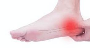 子供の踵の痛みの原因は?